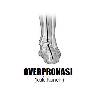 Overpronasi